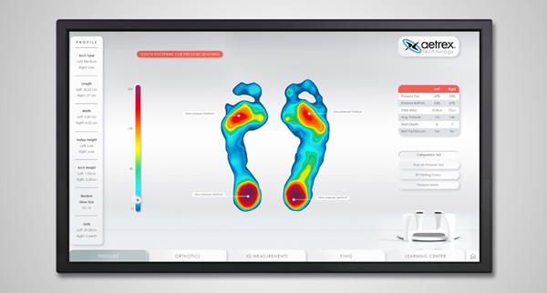 Foot Pressure Mapping Sample Result