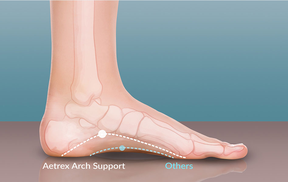 Aetrex Orthotic's Signature Arch Support
