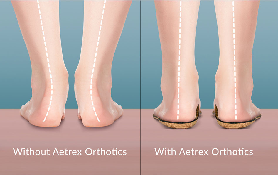 Aetrex Orthotic's Help with Alignment